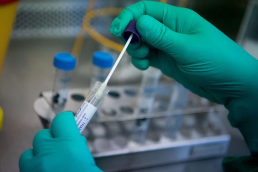 Yêu cầu doanh nghiệp báo cáo giá bán test xét nghiệm SARS-CoV-2 trước ngày 17/10