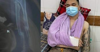 Ca sĩ Khắc Việt bị gãy xương cổ tay, hủy toàn bộ lịch diễn